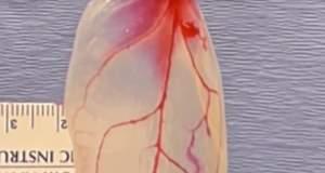 Έφτιαξαν καρδιακά κύτταρα πάνω σε φύλλα σπανακιού! [ΒΙΝΤΕΟ]