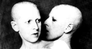 Η τραγική ιστορία του πρώτου καταγεγραμμένου ίντερσεξ προσώπου