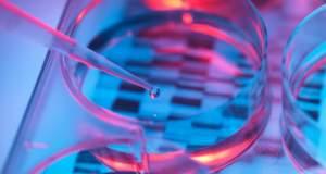 Αναπτύχθηκε ένα νέο προγεννητικό τεστ DNA για το σύνδρομο Ντάουν